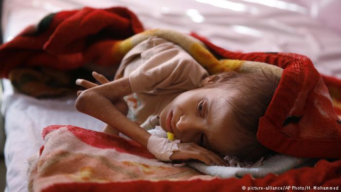 اليمن.. 22 مليون مواطن غير مؤمنين غذائيًا