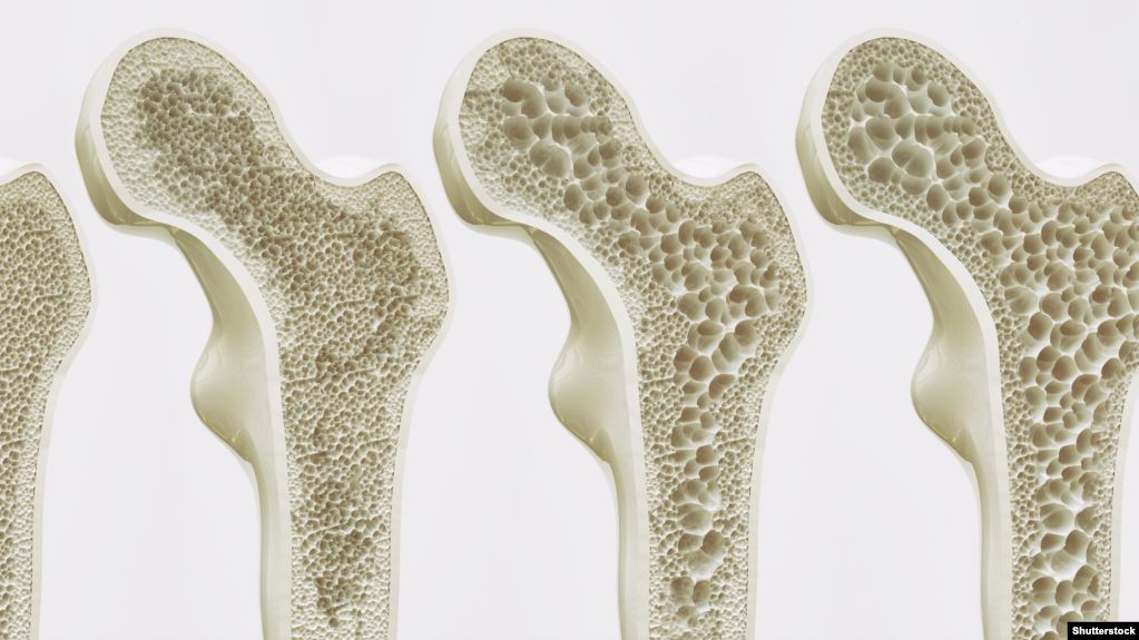 هشاشة العظام تزيد خطر الوفاة بسبب أمراض القلب