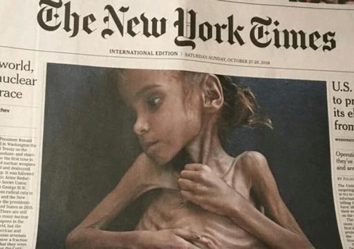 وفاة الطفلة أمل التي لفتت أنظار العالم للمجاعة في اليمن