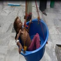 منظّمة: المجاعة تهدّد مليون طفل إضافي في اليمن بسبب هجوم الحُديدة