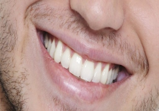 دراسة: أمراض الفم والأسنان تزيد خطر الإصابة بسرطان الكبد