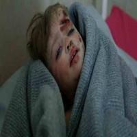 مقتل 16 طفلاً في غارة قرب مدرسة في إدلب السورية