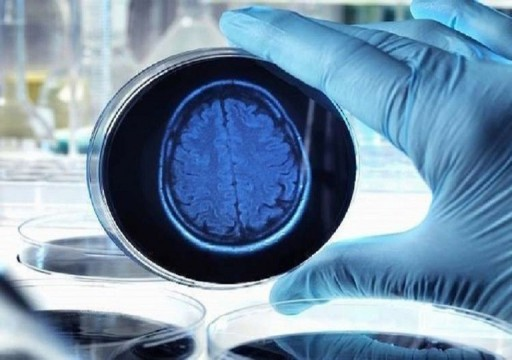 اكتشاف جديد يعطي أملا لعلاج الأعراض المبكرة لمرض ألزهايمر