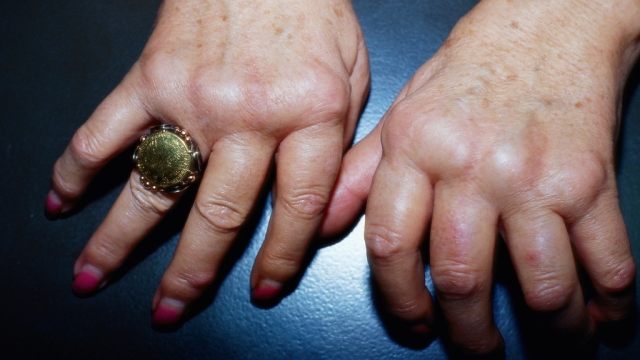 خطر أدوية الروماتيزم على كبار السن