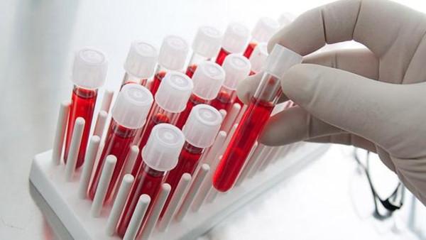 الصحة العالمية تحث على استخلاص أدوية من الدم ضد أيبولا