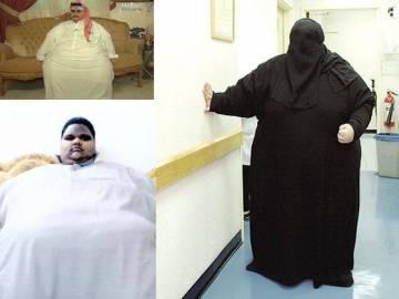 الكويت الأولى عربياً في السمنة