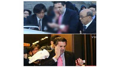 إصابة السفير الأمريكي في كوريا الجنوبية بهجوم مسلح