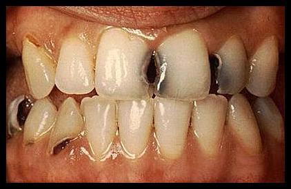 أكثر من 2,4 مليار شخص في العالم مصابون بتسوس الأسنان